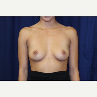 25-34 year old woman treated with Breast Augmentation before 3776280