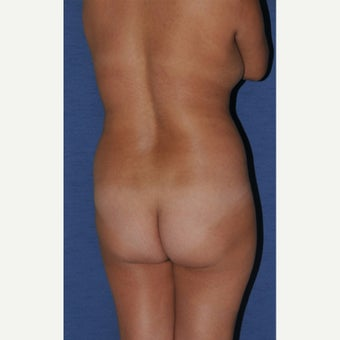 18-24 year old woman treated with Brazilian Butt Lift before 2266566