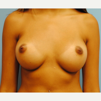 20 year old woman treated with Breast Implants. Saline, 290 cc filled to 300 cc. A to C cup. after 3304503