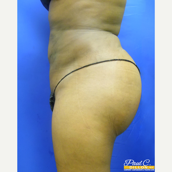35-44 year old woman treated with Brazilian Butt Lift after 3576478