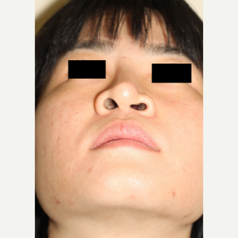 Revision Rhinoplasty to remove and repair damage from silicone implant placed ovreseas before 3506639