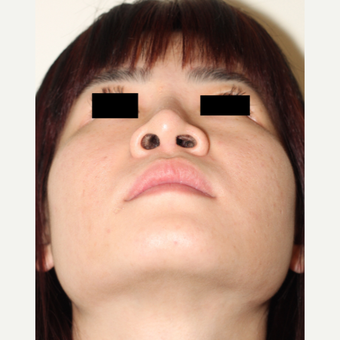 Revision Rhinoplasty to remove and repair damage from silicone implant placed ovreseas after 3506639