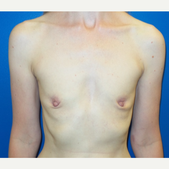 25-34 year old woman treated with Breast Augmentation before 3777538
