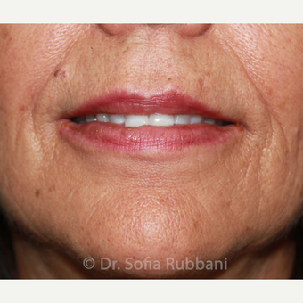 55-64 year old woman treated with Belotero & Restylane Silk after 2706274