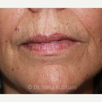 55-64 year old woman treated with Belotero & Restylane Silk before 2706274
