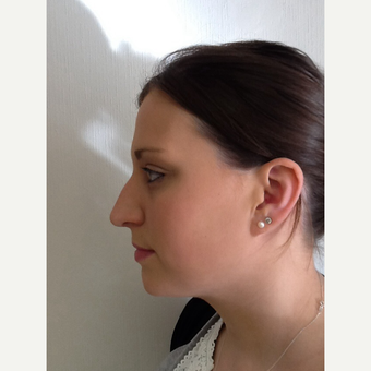 25-34 year old woman treated with Rhinoplasty before 3122784