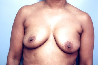 Fat Transfer to correct assymetry of breasts before 210113