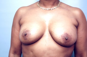 Fat Transfer to correct assymetry of breasts after 210113