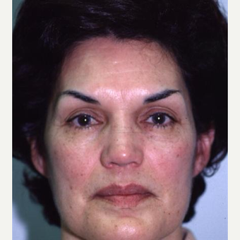 55-64 year old woman treated with Eyelid Surgery before 3094018