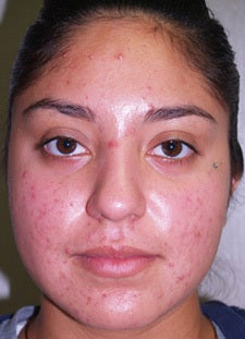 Vi-Peel for Acne before 665454