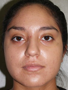 Vi-Peel for Acne after 665454