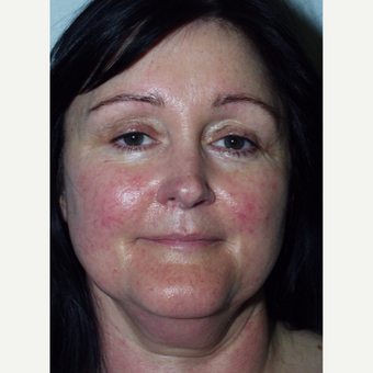 48 year old woman undergoes lower facelift before 3440025