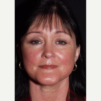 48 year old woman undergoes lower facelift after 3440025
