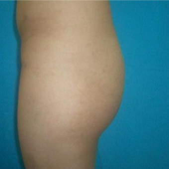 35-44 year old woman treated with Brazilian Butt Lift before 3480595