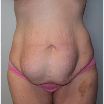 25-34 year old woman treated with Panniculectomy & Hernia Repair before 3141345