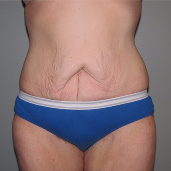 25-34 year old woman treated with Panniculectomy & Hernia Repair after 3141345