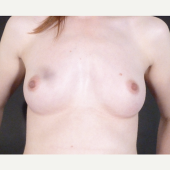 18-24 year old woman treated with Breast Augmentation before 3832882