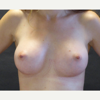 18-24 year old woman treated with Breast Augmentation after 3832882