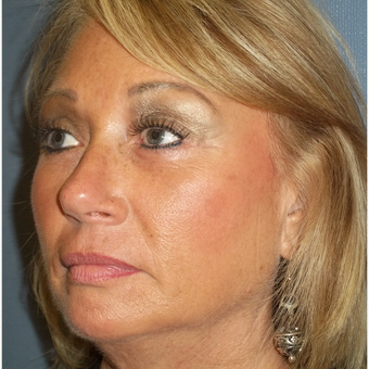 55-64 year old woman treated with Brow Lift after 3538877