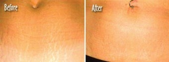 Stretch marks treated with laser therapy