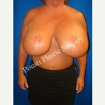 55-64 year old woman treated with Breast Lift before 1588317