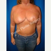 55-64 year old woman treated with Breast Lift after 1588317