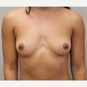 27 year old woman treated with Breast Augmentation before 3689567