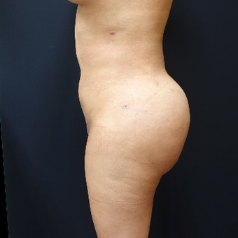 25-34 year old woman treated with Fat Transfer after 3286440