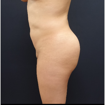 25-34 year old woman treated with Fat Transfer before 3286440