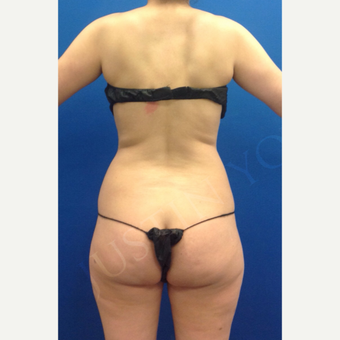 25-34 year old woman treated with Brazilian Butt Lift before 2243013