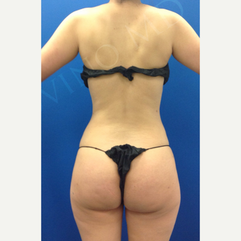 25-34 year old woman treated with Brazilian Butt Lift after 2243013