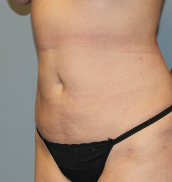 35-44 year old woman treated with Liposuction after 3589587