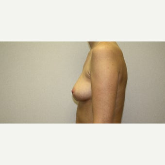 25-34 year old woman treated with Breast Augmentation 1815599