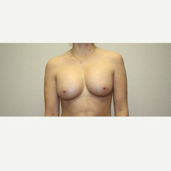25-34 year old woman treated with Breast Augmentation after 1815599