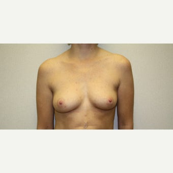 25-34 year old woman treated with Breast Augmentation before 1815599