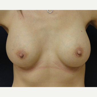35-44 year old woman treated with Breast Implants after 3069821