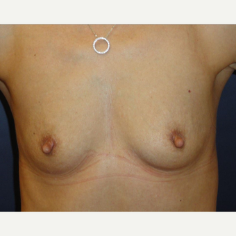 35-44 year old woman treated with Breast Implants before 3069821