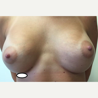 18-24 year old woman treated with Breast Augmentation after 3629303