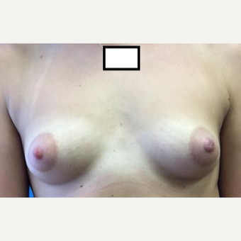 18-24 year old woman treated with Breast Augmentation before 3629303