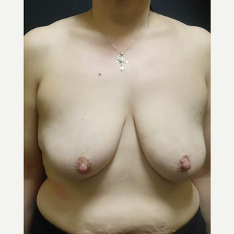 35-44 year old woman treated with Breast Lift with Implants before 3014343