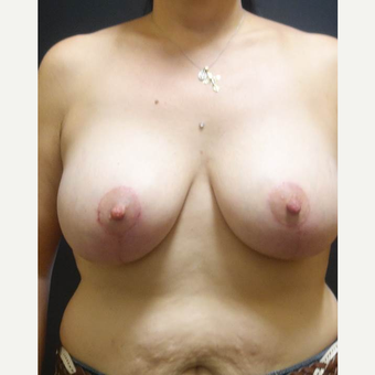 35-44 year old woman treated with Breast Lift with Implants after 3014343