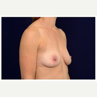 35-44 year old woman treated with Sientra Breast Implants before 1580928