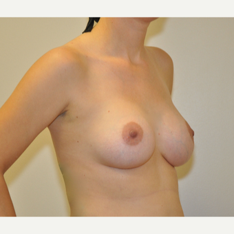 25-34 year old woman treated with Breast Augmentation after 3207855