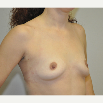 25-34 year old woman treated with Breast Augmentation before 3207855