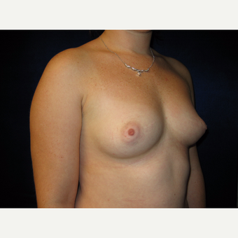 25-34 year old woman treated with Breast Augmentation before 3727138
