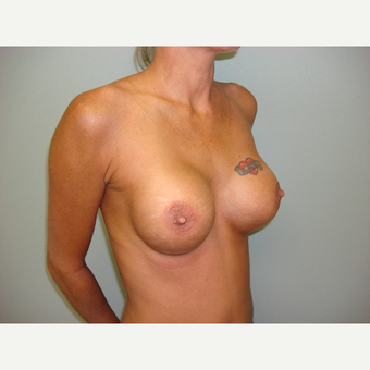 18-24 year old woman treated with Breast Augmentation after 3822892