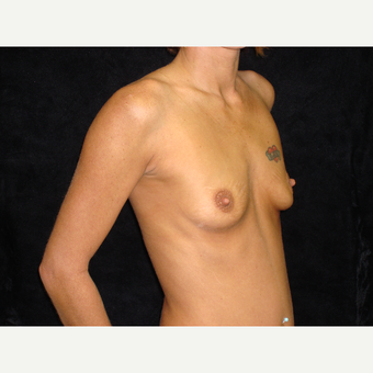 18-24 year old woman treated with Breast Augmentation before 3822892