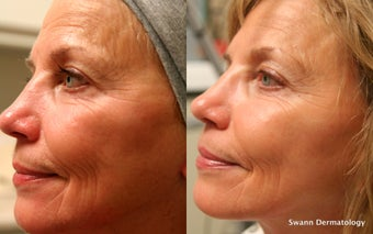 Liquid facelift using only Radiesse Filler before 950189