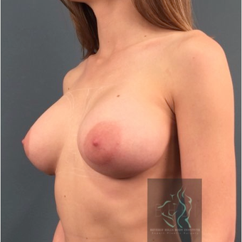 25-34 year old woman treated with Breast Implants before 3110465