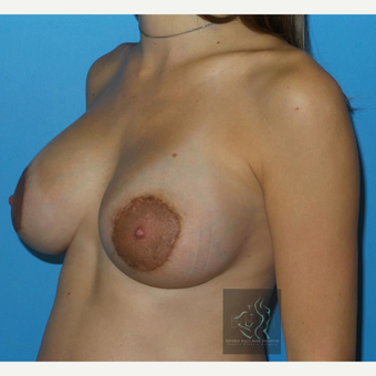 25-34 year old woman treated with Breast Implants after 3110465